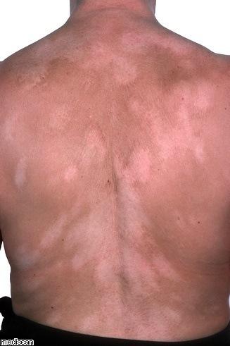 El color de ojos puede indicar enfermedades de la piel