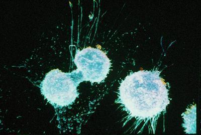 celulas-de-cancer-dividiendose.jpg