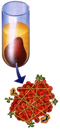 hemofilia-coagulo.jpg