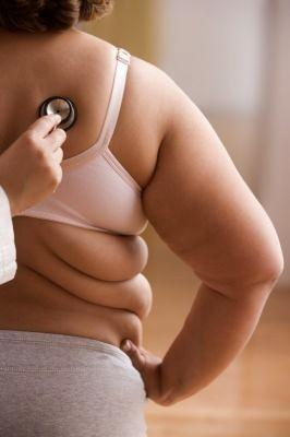 obesidad2.jpg