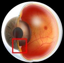 glaucoma_eye.jpg