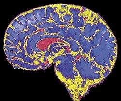 1006062_dano-cerebral.jpg