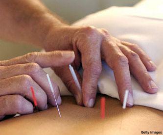 acupuntura_f3.jpg