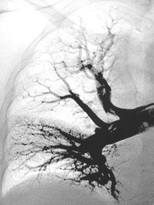 embolia-pulm.jpg