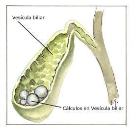 200_vesiculacalculos_rotulo268.jpg