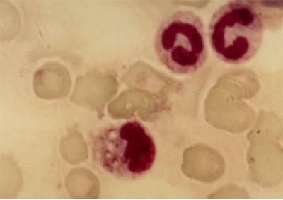 linfoma-gastr.jpg