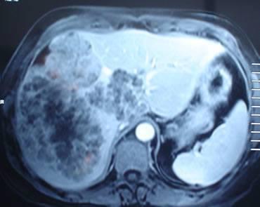 metastasis-hepaticas.jpg