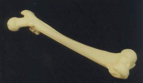 osteosclerosis.JPG