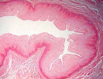 pod02-esofago-he-06.jpg