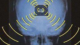 Podrían estimar la gravedad de la depresión mediante el estudio de ondas cerebrales