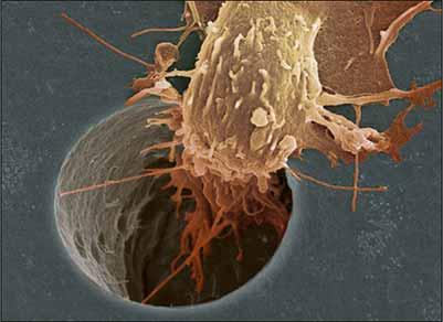 celula-cancerosa.jpg