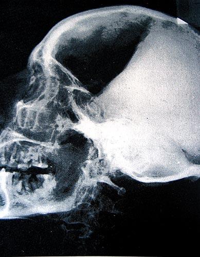 absceso-dentario.jpg