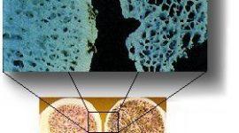 Concepto de osteoporosis