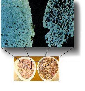 osteoporosis-diagram.jpg