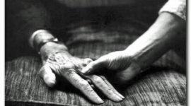 Manifestaciones clínicas de la diabetes en la edad senil