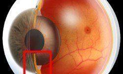 Consecuencias y tratamiento del glaucoma de ángulo abierto