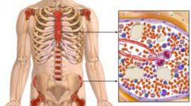 Metaplasia mieloide agnogénica (mielofibrosis idiopática)