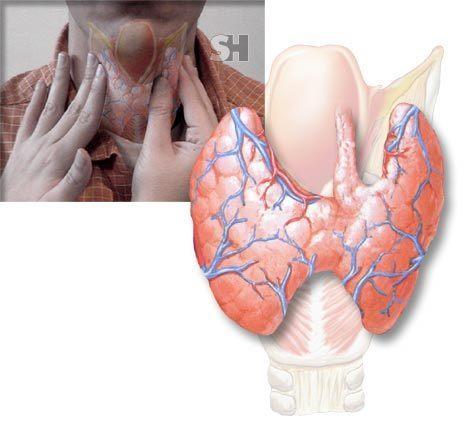yodo-glandula-tiroides.jpg