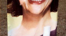 Onicofagia : El comerse las uñas compulsivamente
