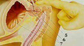 Se pueden prevenir enfermedades de la próstata