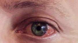 Cómo evitar la irritación de ojos