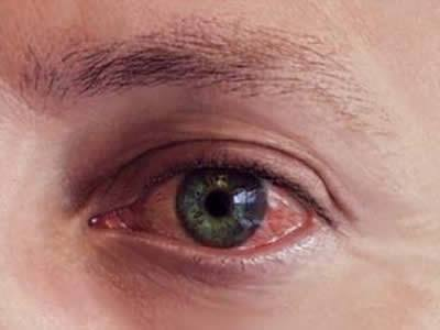 irritación de ojos