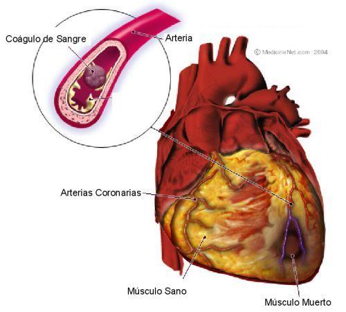colesterol-trigliceridos