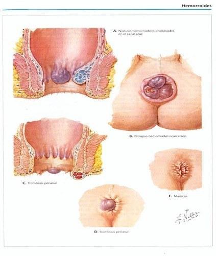 hemorroides1