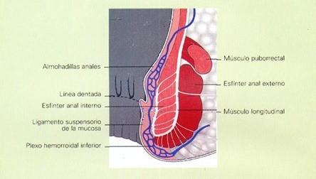 hemorroides2