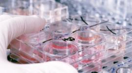 Tratamientos con células madre