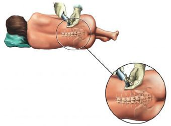 La epidural