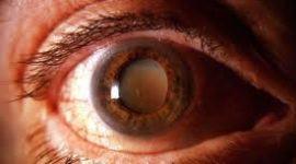 Nuevos tratamientos del cáncer de ojo