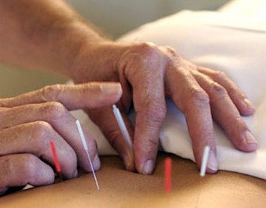 fumar acupuntura