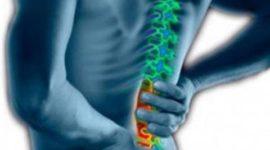 5 trucos para aliviar tu dolor de espalda