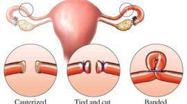 Métodos anticonceptivos   Ligadura de trompas