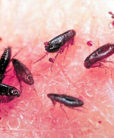 Picaduras pulgas, síntomas y tratamiento