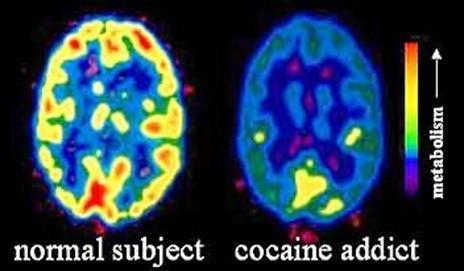 Efectos del consumo de cocaína