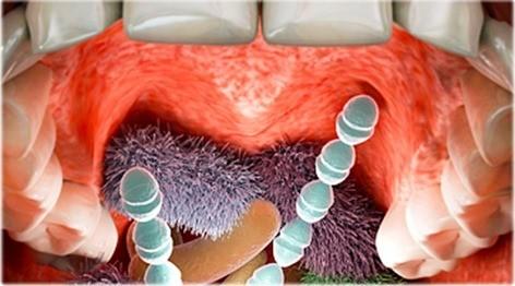 bacterias dientes