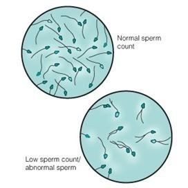 disminuncio numero espermatozoides