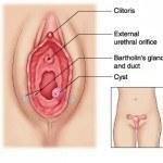 Quiste de Bartolino | Síntomas, causas y tratamiento