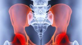 Las causas, los síntomas y el tratamiento de la pubalgia