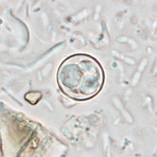 cyclospora-4