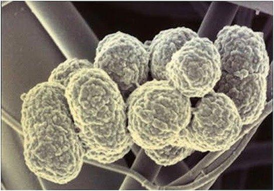 La enfermedad de las encías y artritis reumatoide tienen en común bacterias