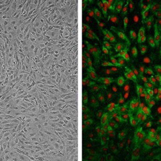 Celulas-endoteliales