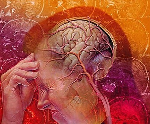 Neuralgia-del-nervio-trigemino