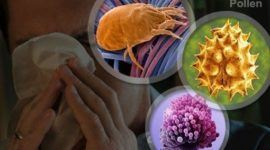 ¿Por qué aumentan los casos de alergias?