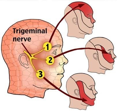 neuralgia-trigemino1