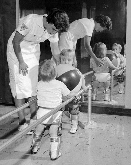 HIL54497CHILDPOLIO Physical therapist assisting two small children with polio holding on to rail. (Both are in braces). 1963 Charles Farmer, AVS tray #129, B 54497