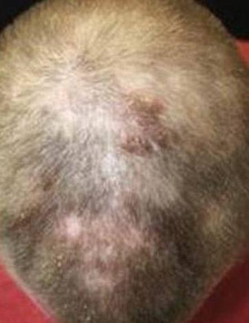 cinco-meses-tratamiento_thumb.jpg