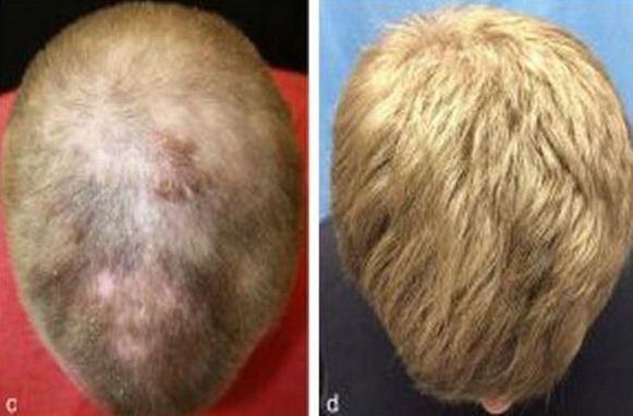 tratamiento-alopecia_thumb.jpg